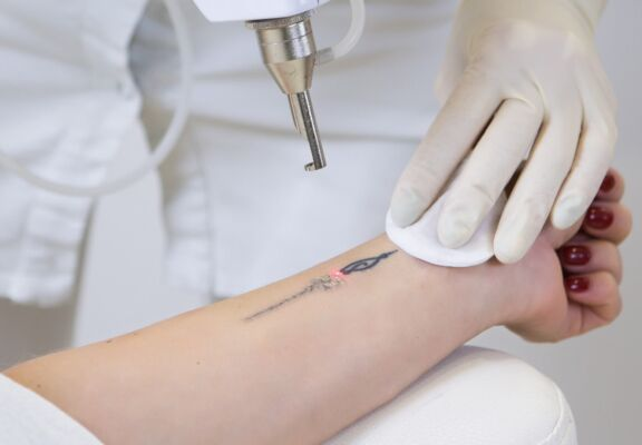 Close-up of laser tattoo removal