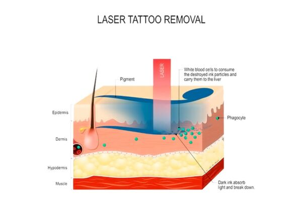 tattoo-removal-kiev-