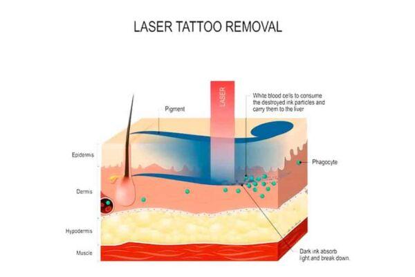 tattoo-removal-kiev-