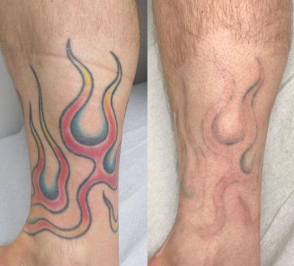 удаление цветного тату ремувером